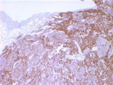 Small cell carcinoma of the bladder. Neuroendocrin