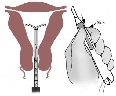 Retracting slider and expelling the IUD from inser