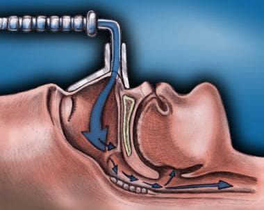 Breathing-related sleep disorder. Lateral cross-se