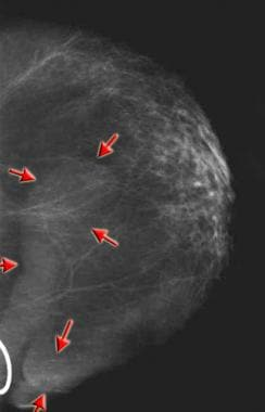 Craniocaudal mammogram demonstrating extensive kel