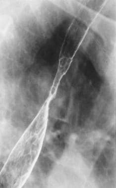 Spot radiograph from double-contrast esophagograph
