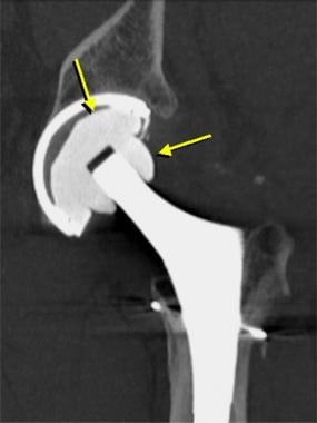 Image from a patient who had a normal total hip ar