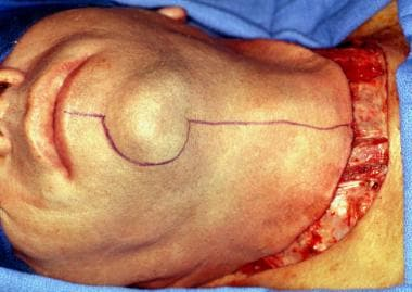 Incision typically performed for patients requirin