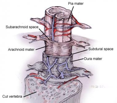 Spinal Cord Stimulation: Background, Indications, Contraindications