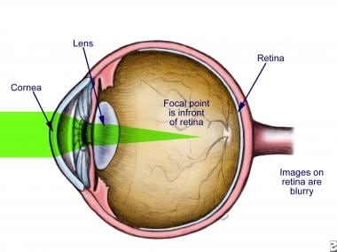 Illustration of myopia.