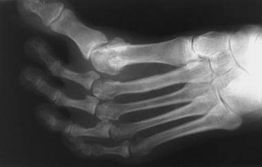 Anteroposterior radiograph of foot depicts idiopat