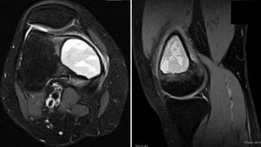 Axial and sagittal T2-weighted MRI of distal femor