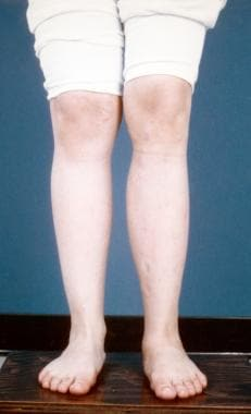 After postpolio calf augmentation.