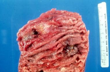 Gross specimen of bowel showing ulceration seconda