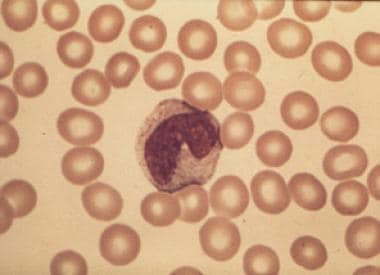 Peripheral blood smear from a patient with immune