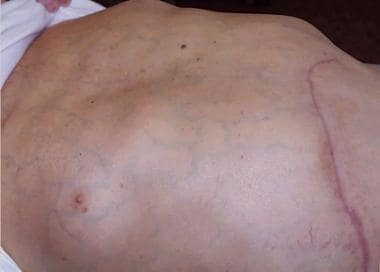 hepatic cancer medscape