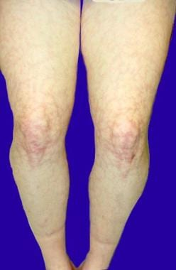 Antiphospholipid syndrome. Livedo reticularis.
