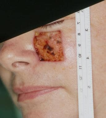 Large medial cheek defect.