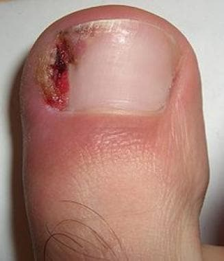 Stage 3 ingrown nail. Courtesy of Wikimedia Common