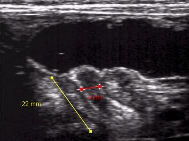Longitudinal ultrasonogram of pyloric stenosis. Py