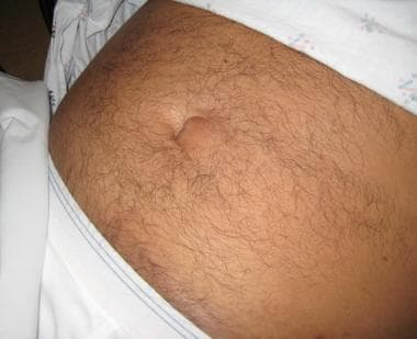Hernia Reduction: Background, Indications, Contraindications