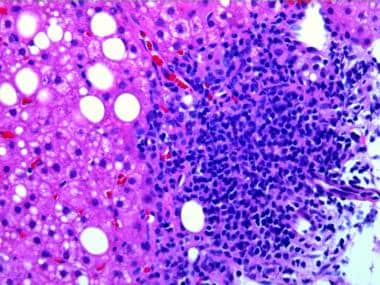 Lymphoid aggregate in portal tract.