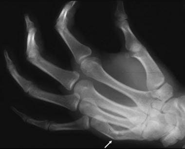 A fracture of the shaft of the fifth metacarpal bo