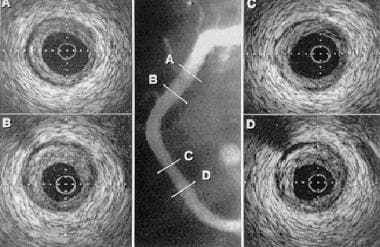 Example of intravascular ultrasonography (IVUS) im