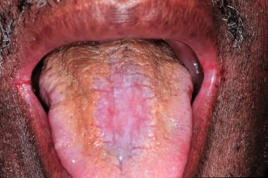 The dorsal tongue demonstrates hyperplastic candid