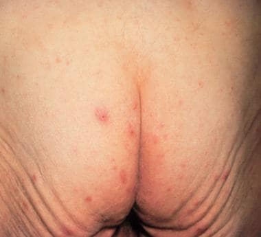 Scabies on buttocks. Courtesy of William D. James,