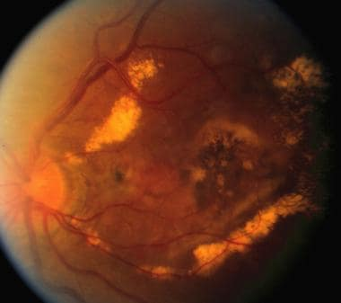 Late complication of choroidal neovascularization