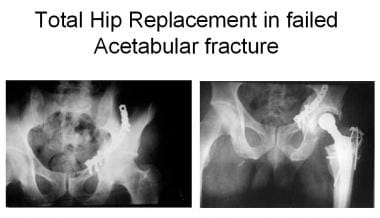 Total hip replacement in posttraumatic arthritis a