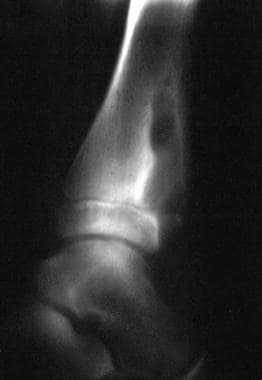Lateral radiograph of the distal tibia. This image