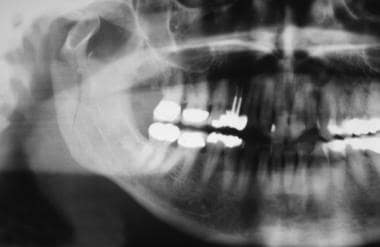 Right mandibular condylar fracture.