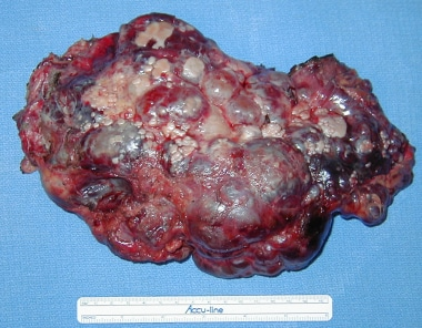 Resection of involved liver in polycystic liver di