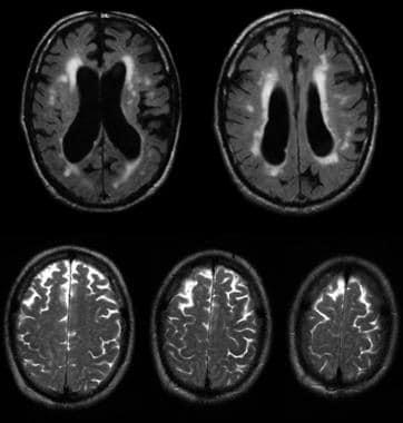 Communicating hydrocephalus with surrounding