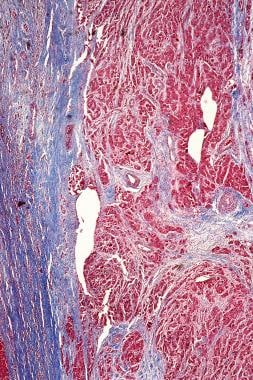 Masson trichrome stain photomicrograph of fibrolam