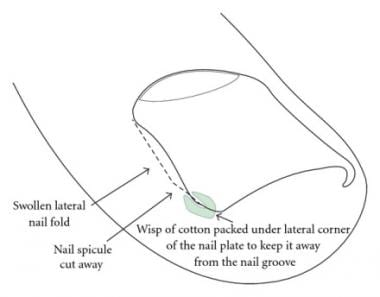 Schematic view for cotton wick insertion. Courtesy