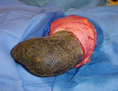 A trichobezoar within the stomach of a 14-year-old