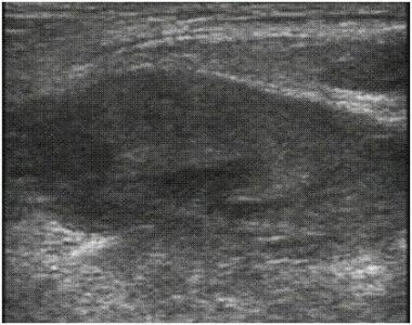 Ultrasound image of herniated bowel.