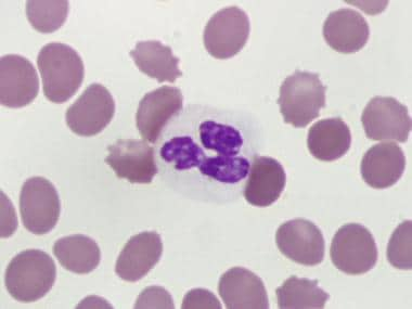 Dysgranulopoiesis. Peripheral blood neutrophil wit