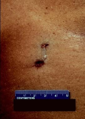 A stab (puncture) wound complex produced by a barb