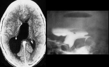 Left, CT scan of the brain shows marked dilatation