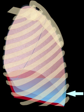 Illustration of the chest, depicted in an upright