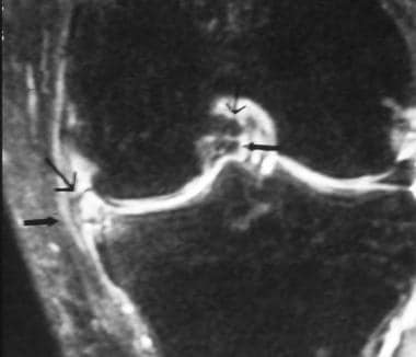 Meniscal Tears on MRI: Overview, Anatomy, Descriptions and ...