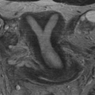 Uterus, müllerian duct abnormalities. T2 fast spin
