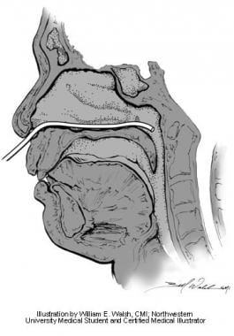 Postnasal rhinomanometry. Illustration by William