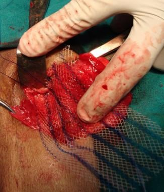 Open inguinal hernia repair. First medialmost stit