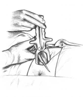 A median or mediolateral episiotomy may be perform