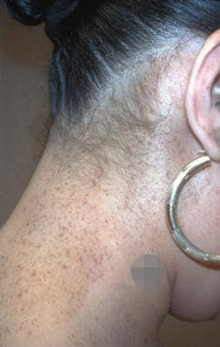 A large unilateral speckled lentiginous nevus that