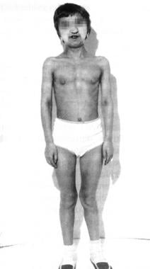 Short stature and dark skin of Crouzon syndrome.