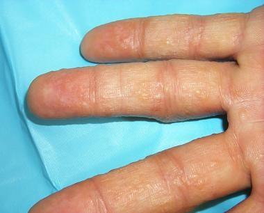 Dyshidrotic Eczema (Pompholyx) Clinical Presentation