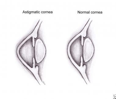 Illustration of an astigmatic cornea.
