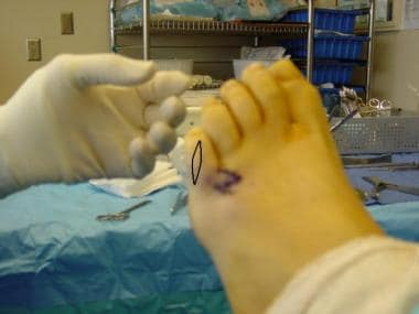 Fifth-toe deformities. After rotation of Z flaps a