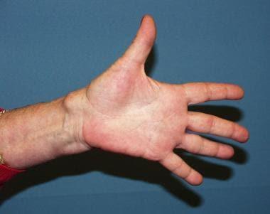 Recurrent multilobulated left volar ganglion cyst.